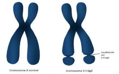 El Síndrome X Frágil
